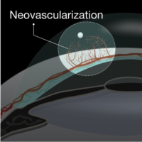 neovasculariation in cornea